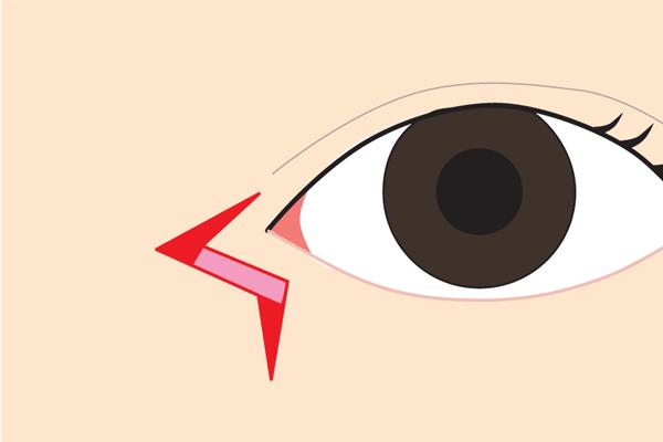 目頭切開Z形成皮弁の入替り