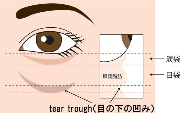 目の下の凹み