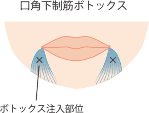口角を上げるセット ボトックス注入図