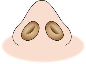 鼻尖縮小後鼻の穴の段差