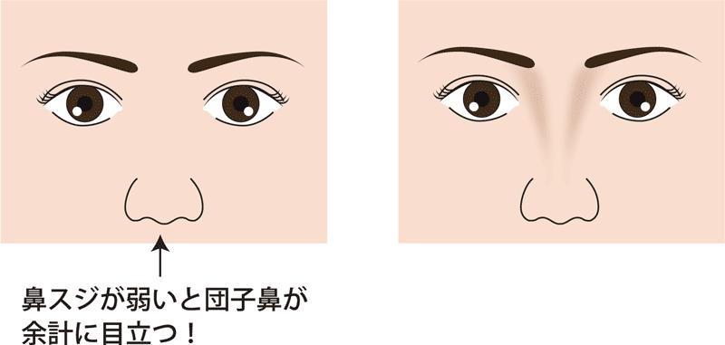 鼻尖縮小術-鼻筋あるなし