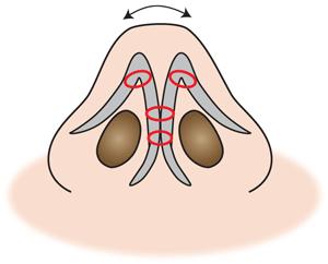 鼻尖縮小 吸収糸で縛る