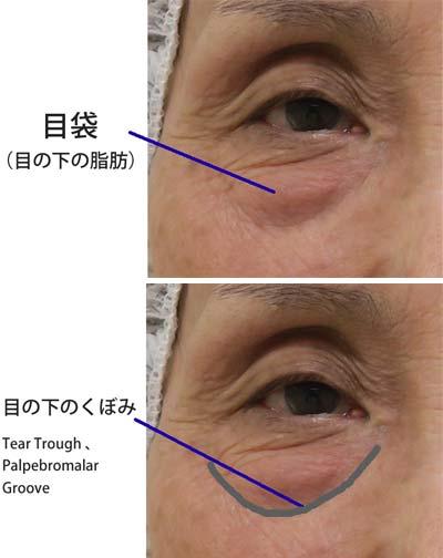 目の下脂肪取り+目の下脂肪