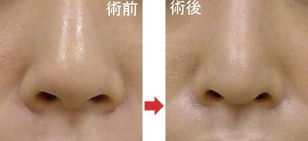 鼻尖縮小と軟骨移植の症例写真
