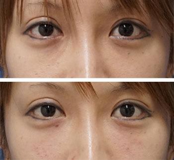 ベビーコラーゲン症例写真8