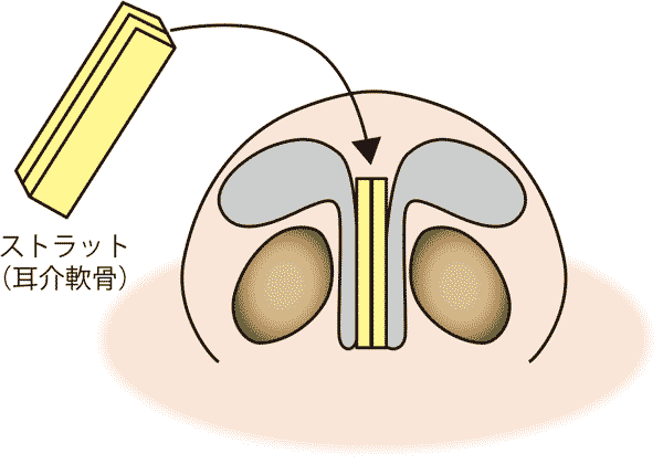 鼻尖軟骨移植(ストラット) 3D法