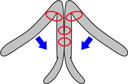 鼻尖縮小の鼻翼軟骨の突出