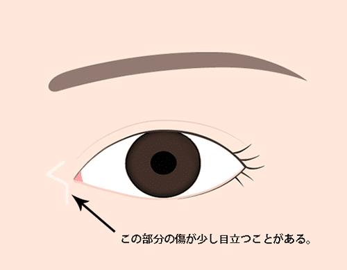 目頭切開Z形成の目立ちやすい