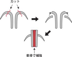 3D法鼻翼軟骨形成のやり方