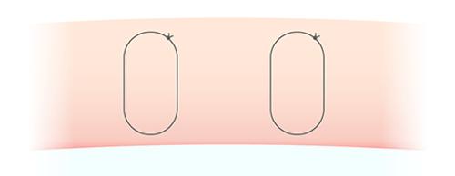 吸収糸二重術 断面