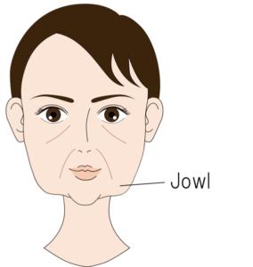 Jowlのたるみ