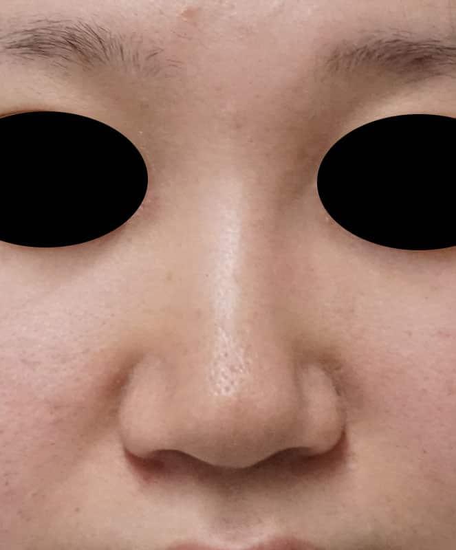 小鼻縮小(flap法) 手術直後のBefore写真
