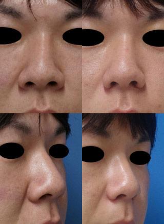 小鼻を小さく-処置前後-flap法-外側法2