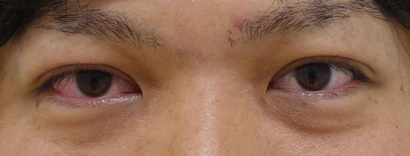 もとびアイプラチナム 手術直後のAfterの写真