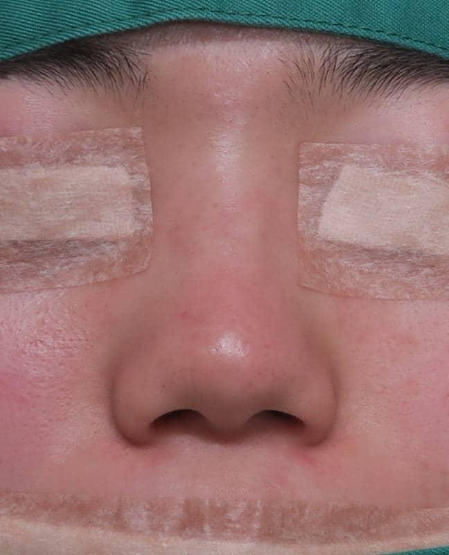 鼻中隔延長、鼻尖形成、小鼻縮小(flap法) 手術直後のBefore写真
