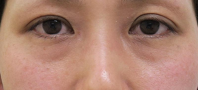 目の下くまやたるみを解消!(裏ハムラ) 1ヶ月後のBefore写真