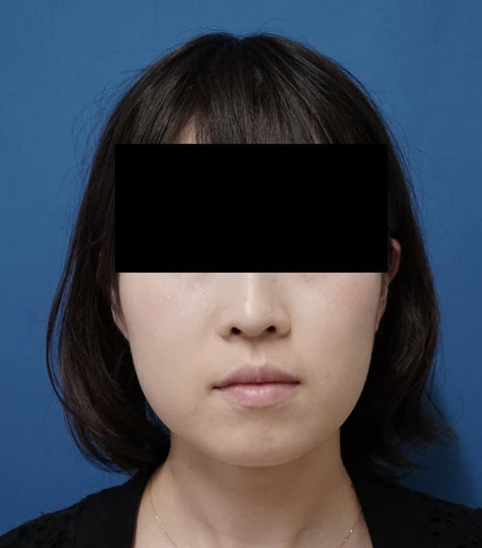 アラガン強力小顔ボトックス 1か月後のAfterの写真