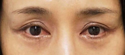 眼瞼下垂手術後⇒他院手術⇒修正手術 3ヶ月後のAfterの写真