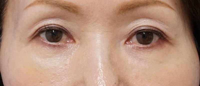 ダウンタイムの少ない目の下の若返り手術 1週間後のAfterの写真