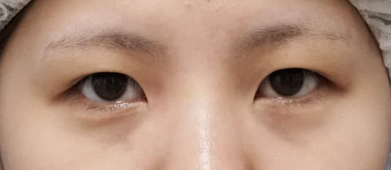 二重全切開、眼瞼下垂、目頭切開(Z形成) 1ヶ月後のBefore写真
