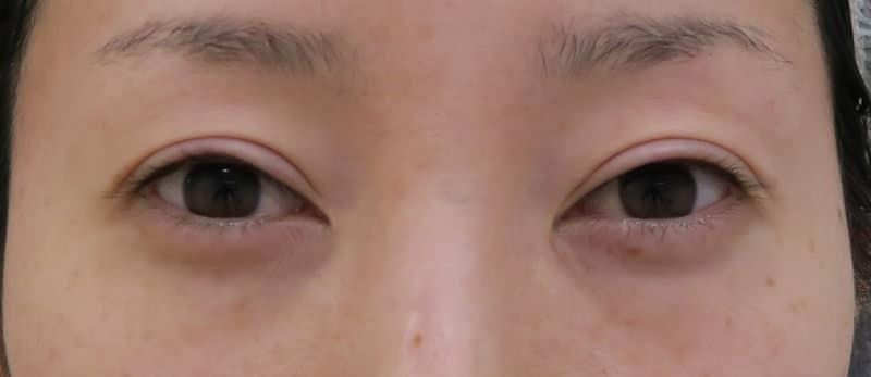 目尻切開+たれ目形成で明るく優しい目元に。&目の下脂肪取り 1か月半のBefore写真