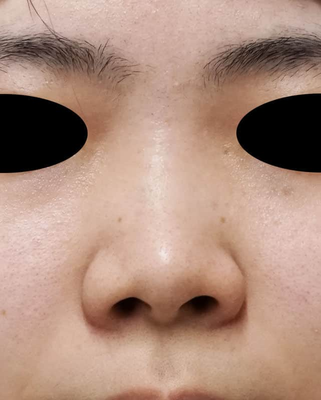 小鼻縮小(内側flap法+外側法) 1か月後のBefore写真