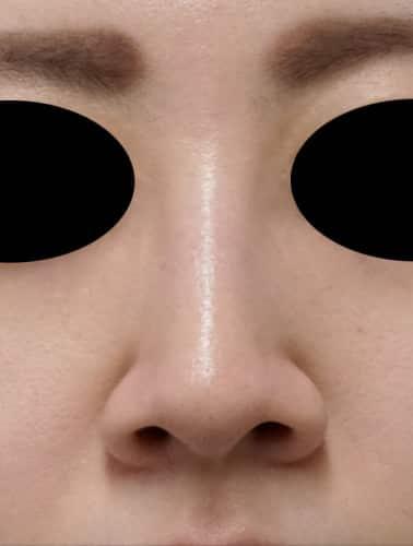 小鼻縮小(flap法) 1週間後のBefore写真