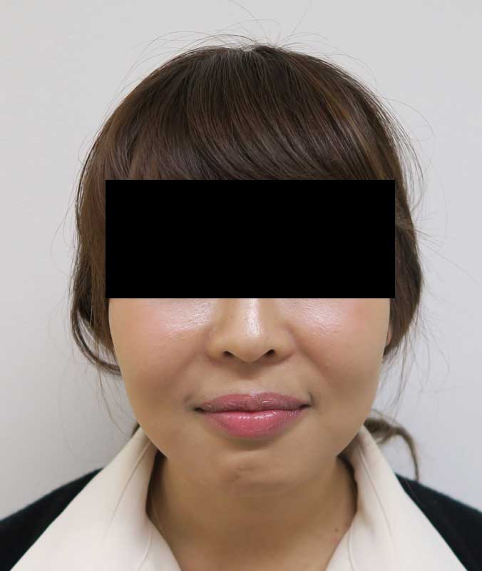 腫れない小顔注射BNLS(ホホ・ホホ骨)+強力エラボトックス 3回後のBefore写真