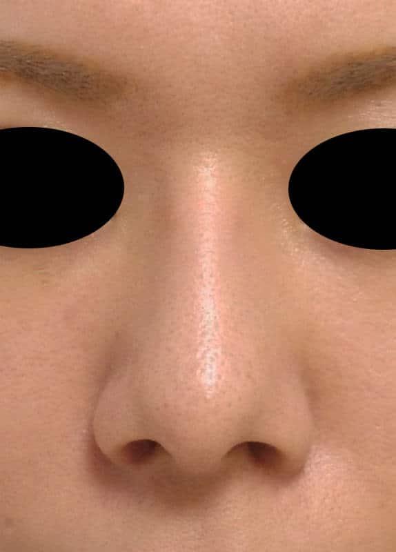 鼻先を伸ばす鼻中隔延長手術(+プロテーゼ、小鼻縮小) 3ヶ月後のAfterの写真