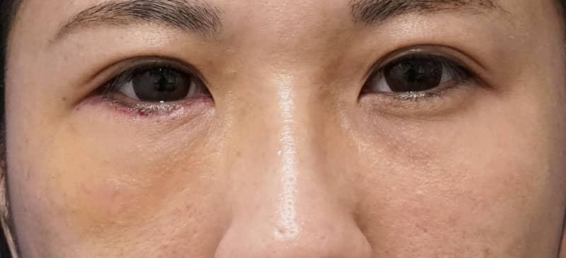 右他院目の下脂肪注入後しこり修正(ハムラ法)  手術前⇒1週間⇒1ヶ月後のAfterの写真