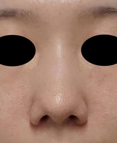 鼻尖形成、鼻尖部軟骨移植、flap法 5ヶ月後のBefore写真