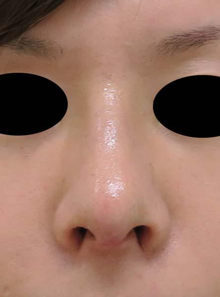 鼻中隔延長、鼻尖形成、隆鼻術(プロテーゼ)、小鼻縮小(flap法) 1週間後のAfterの写真