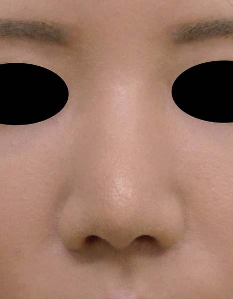 団子鼻をすっきり 鼻尖形成(3D法) 1か月後のAfterの写真