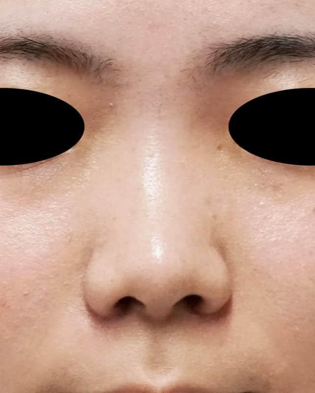 小鼻縮小(内側flap法+外側法) 1か月後のAfterの写真
