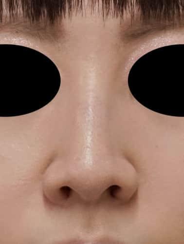 小鼻縮小(flap法) 1週間後のAfterの写真