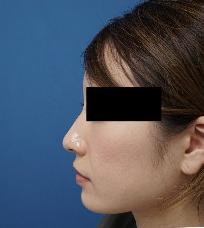 高濃度ヒアルロン酸・クレヴィエル(アゴ) 処置直後のBefore写真