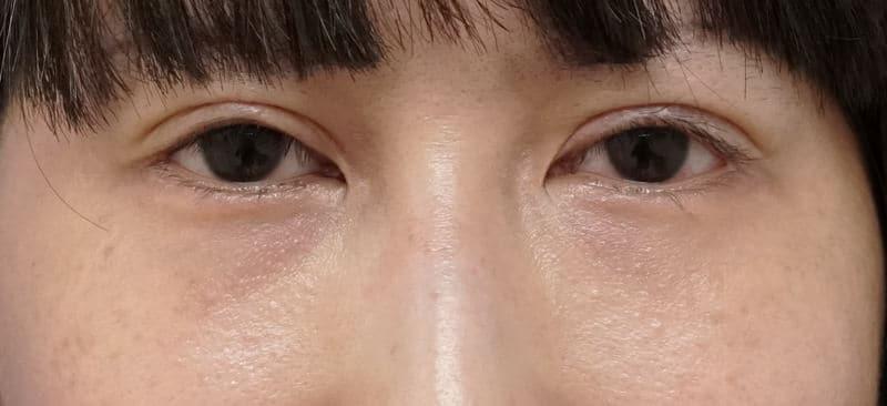 他院の目の下脂肪注入後のしこり除去、修正手術 1ヶ月後のAfterの写真