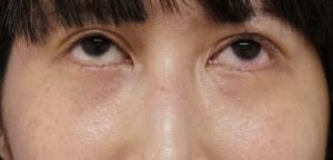 他院の目の下脂肪注入後のしこり除去、修正手術 1ヶ月後