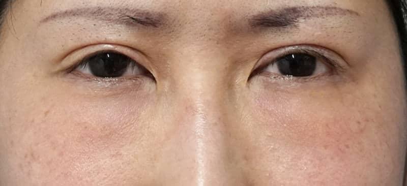 他院の目の下脂肪注入後のしこり除去、修正手術 1ヶ月後のBefore写真