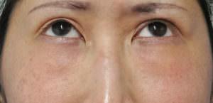 他院の目の下脂肪注入後のしこり除去、修正手術 術前