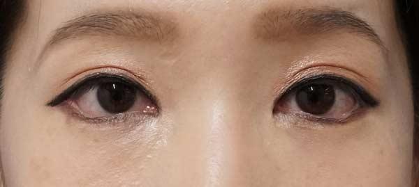 タレ目形成(下眼瞼下制)、目尻切開、目の下脂肪取り 2か月後のAfterの写真