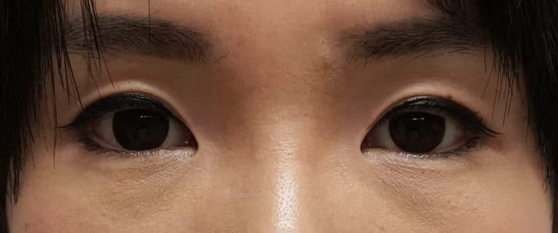 涙袋形成(ヒアルロン酸) 処置直後の画像です。のBefore写真