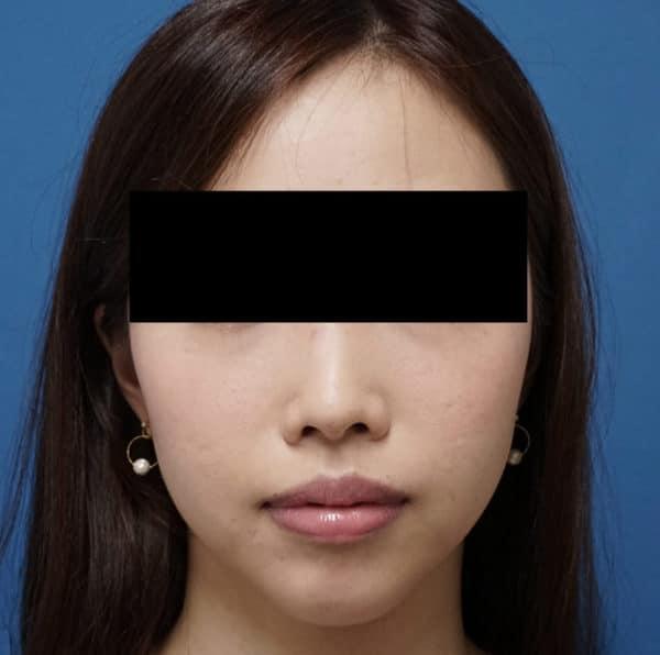 簡単小顔注射 BNLS(ホホ) 1回終了後のBefore写真