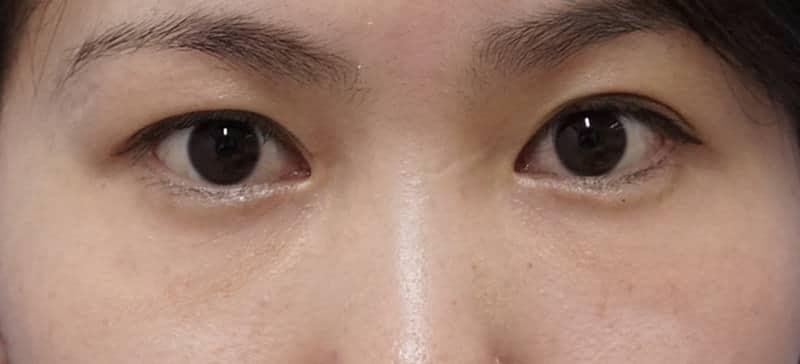 FGFで目の下のクマを改善!プチ整形による肌再生療法のAfterの写真