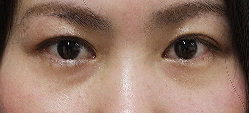 FGFで目の下のクマを改善!プチ整形による肌再生療法のBefore写真