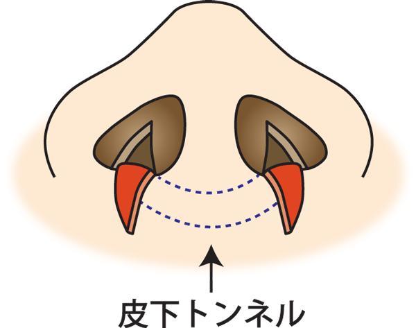 鼻翼縮小(フラップ法)トン