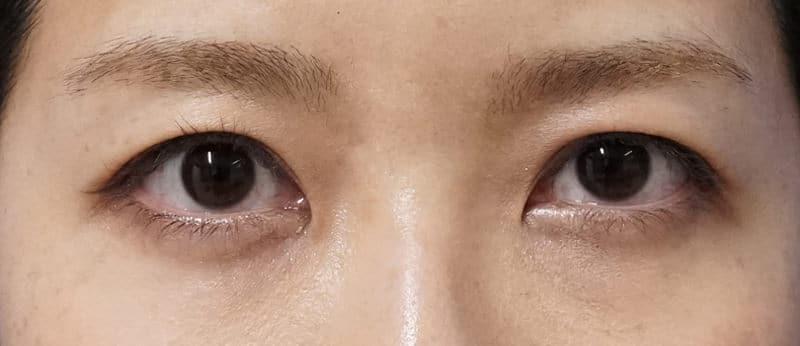 目をぱっちり華やかに|切らない眼瞼下垂プレミアム 3ヶ月後のAfterの写真