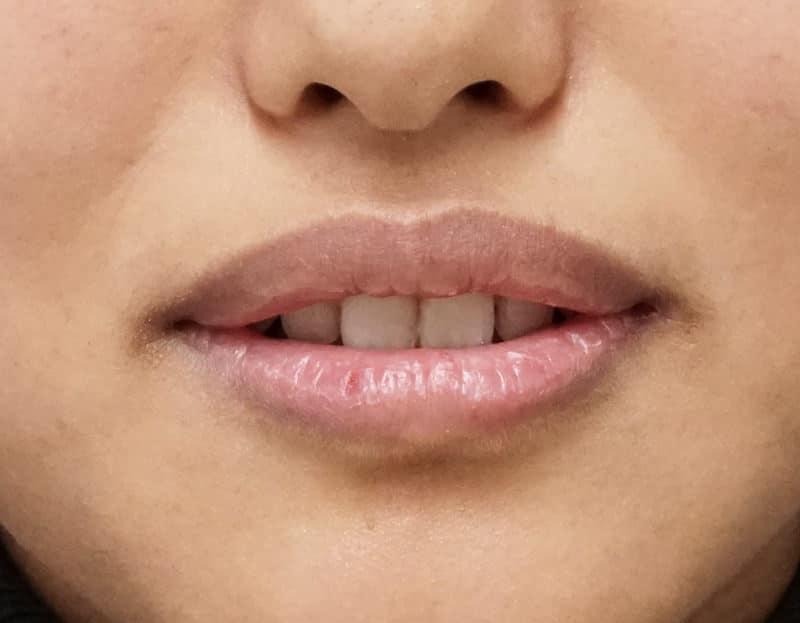 口角を上げるヒアルロン酸(アヒル口に) 処置直後のBefore写真
