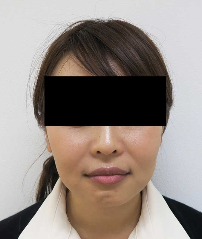 腫れない小顔注射BNLS(ホホ・ホホ骨)+強力エラボトックス 3回後のAfterの写真