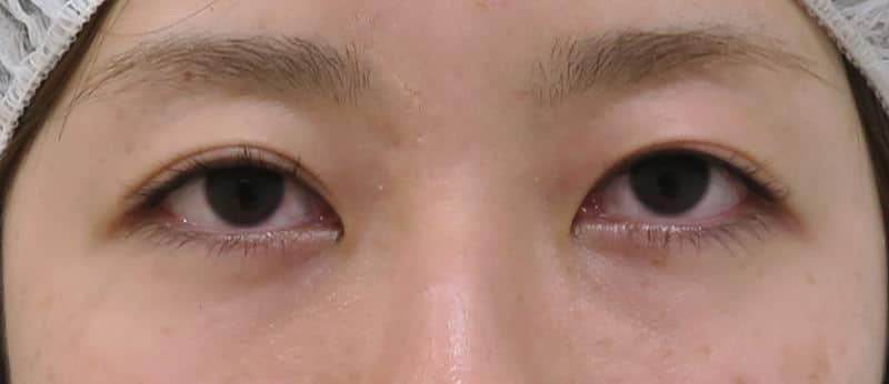 切らずに簡単にデカ目に! 切らない眼瞼下垂プレミアム(眼瞼下垂の改善と同時に二重に) 1週間後のBefore写真